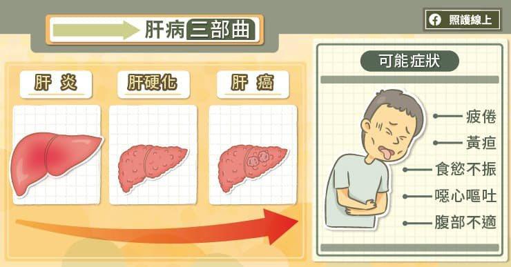 長期處於慢性肝炎的狀態下,還會增加罹患肝癌的風險,加速「肝炎→肝硬化→肝癌」(肝...