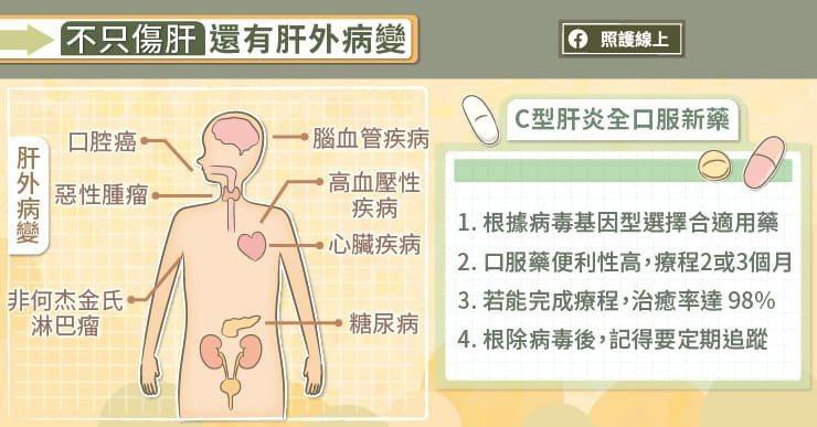 C型肝炎病毒除了會傷害肝臟之外,還可能導致多種肝外病變(extra-hepati...