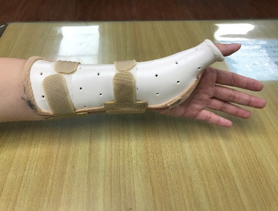 副木可以用來固定不同關節,大拇指形副木可幫助媽媽手、大拇指肌腱發炎症狀。 圖/南...