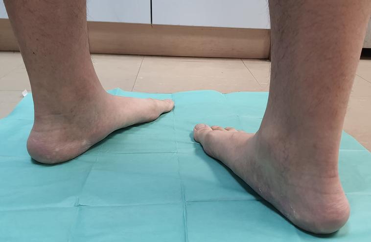 成大醫院兒童骨科醫師施建安表示,造成內八步態主要有3大可能原因,包括小腿骨內旋、...