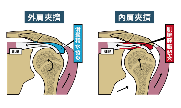 次發性肩夾擠又可因為位置的不同分為「外肩夾擠」、「內肩夾擠」。圖/「練健康」健身...