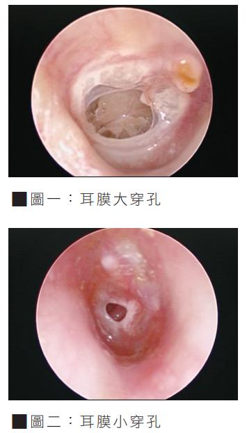 耳膜穿孔 圖/振興醫訊提供