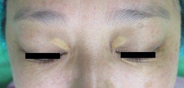 黃斑瘤通常好發40至50歲女性,可透過手術改善外觀。圖/李秉侖提供