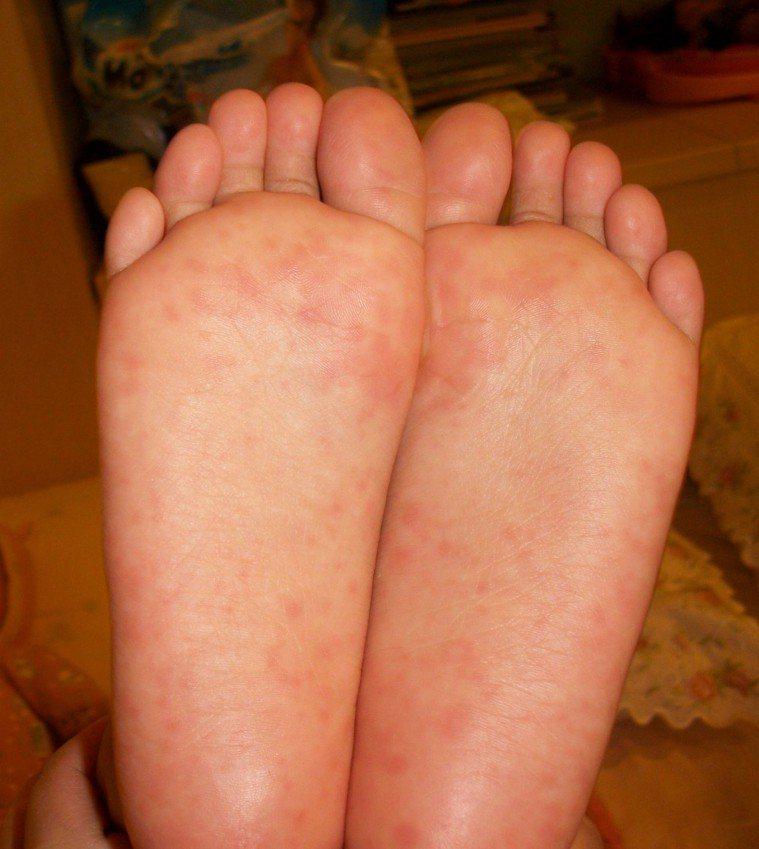 罹患腸病毒病人會在咽喉或手、腳出現小水泡。圖/台中慈濟醫院提供