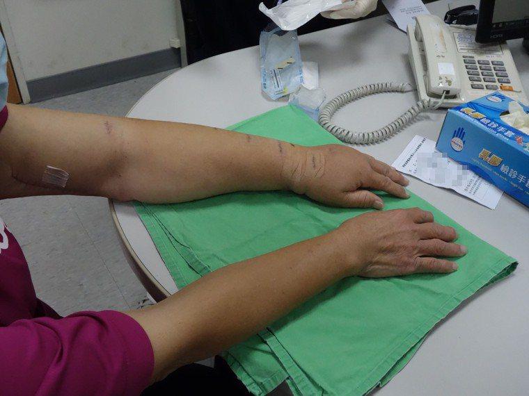 69歲曾姓女子乳癌術中併發淋巴水腫,嘉義大林慈濟醫院整形外科利用超顯微淋巴管與靜...