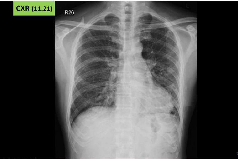 56歲男子嘗試電子煙,短短吸兩周後開始不舒服,兩個月後發現肺部嚴重損傷。圖/王鶴...