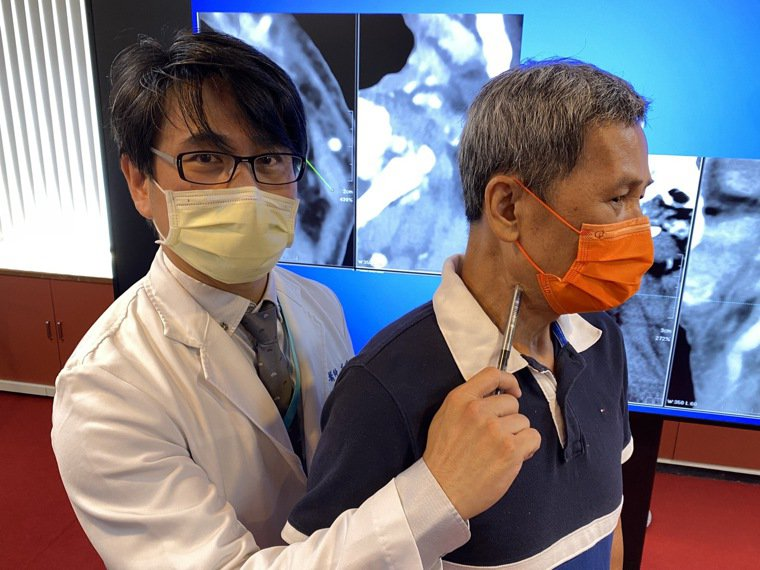 黃姓口咽癌患者(右)放療後頸動脈狹窄悄悄找上他,今年8月接受頸動脈支架手術,恢復...