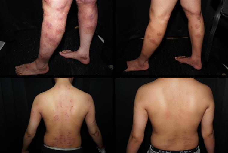 一位22歲中重度異位性皮膚炎患者使用生物製劑,左圖為治療前,右圖為治療16周後病...