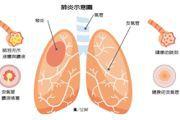 不只新冠肺炎是大敵 3大類型肺炎名列死亡主因之一