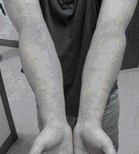 對鎳過敏引起雙手出現接觸性皮膚炎。圖/陳啟信提供