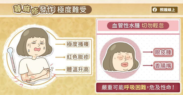 蕁麻疹發作部位可遍布於全身,患者會感覺癢、體溫升高,最為困擾的是當病症出現在臉上...