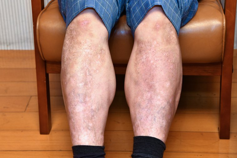 55歲的Steven因確診乾癬性關節炎,皮膚外觀大受影響,不敢出門長達六年。圖/...