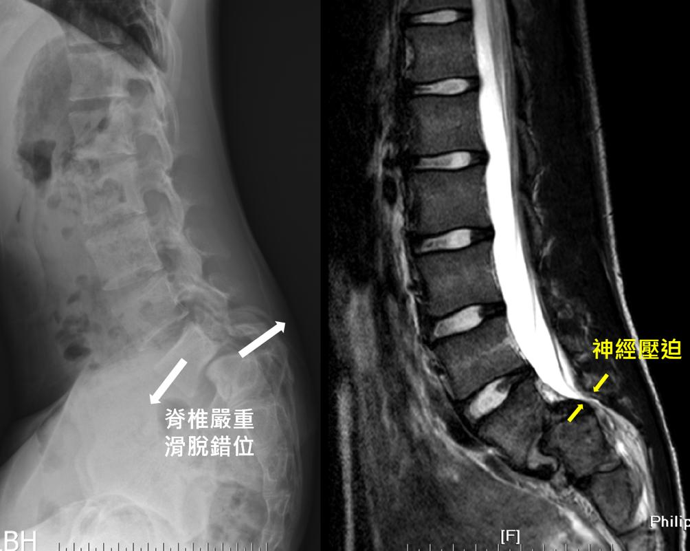 部分脊椎滑脫後可導致嚴重神經壓迫。 中榮/提供。