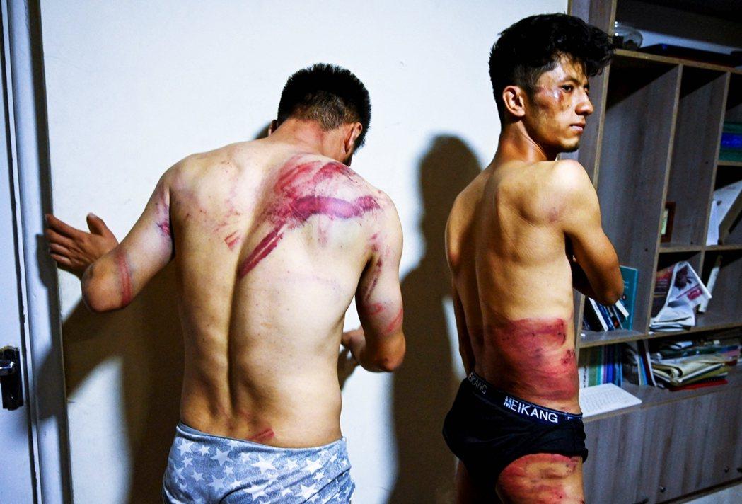 9月8日,因為採訪女性反塔利班抗議而遭鞭打的兩名記者。 圖/法新社