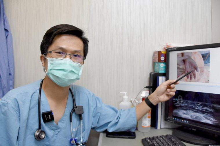 彰基急診暨重症醫學部主治醫師林記賢說,「創傷弧菌」感染,如果未即時處理,組織可能...