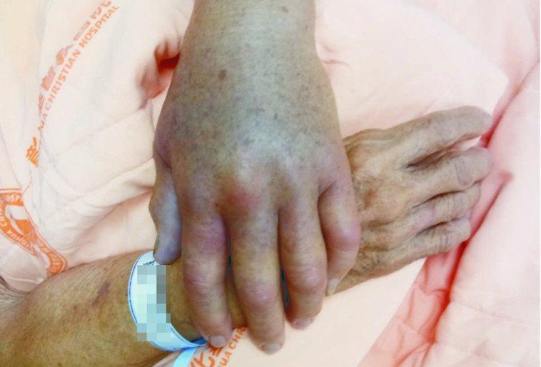 一名88歲阿嬤在處理魚類時,左手不小心被魚鰭刺傷,在幾個小時後就演變成壞死性筋膜...