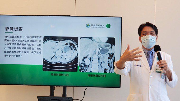 博田醫院副院長李金德(中)表示,胰臟長在腹腔,手術困難。記者王昭月/攝影