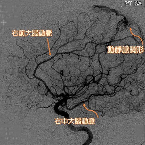 動靜脈畸形患者因腦內微血管發育不全,動、靜脈交會處有不正常畸形組織,使動脈直接注...