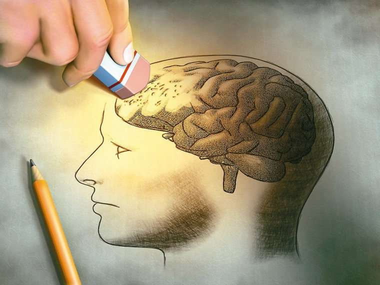 隨著台灣進入高齡社會,失智症罹患人口增加,並有年輕化的現象。圖/123RF