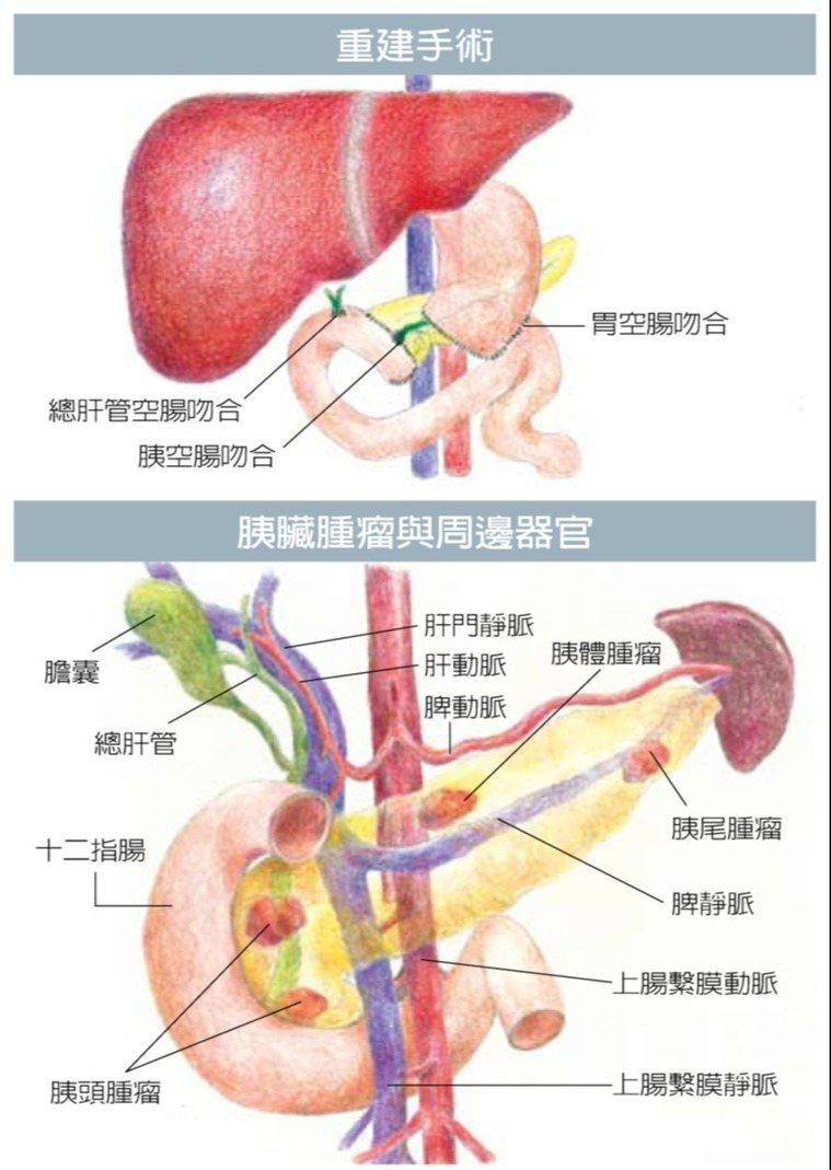 胰臟癌手術難度高,必須切除腫瘤及附近器官,包括部分胃部、十二指腸、膽囊、總膽管與...