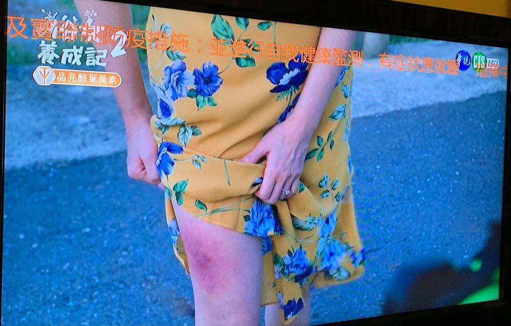 天心在「俗女2」掀開裙子露出大腿傷痕。圖/翻攝華視