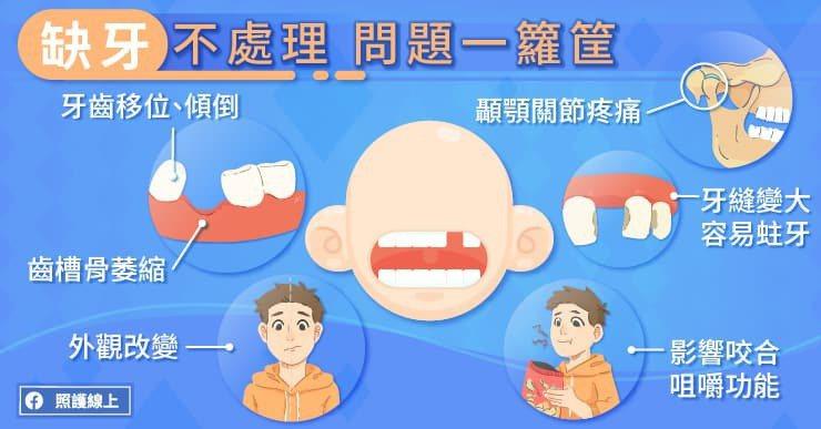 顳顎關節障礙的症狀包括顳顎關節痛、咀嚼疼痛、耳朵周遭疼痛等,這些都是日積月累下來...