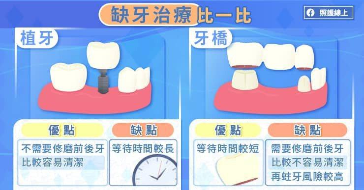 植牙的好處是不需要修磨前後牙,比較容易清潔,且咬合力量趨近真實牙齒,然而並非所有...