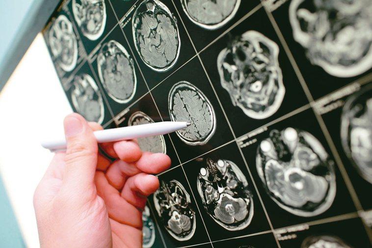 中風症狀多樣複雜,頭痛、頭暈、認知失調皆可能是症狀之一。圖╱123RF