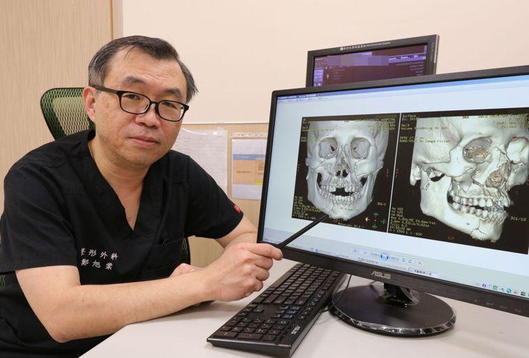 醫師鄭旭棠說明,劉姓顏面骨折患者經接受隱形切口及人體可吸收骨材手術重建後,對重建...
