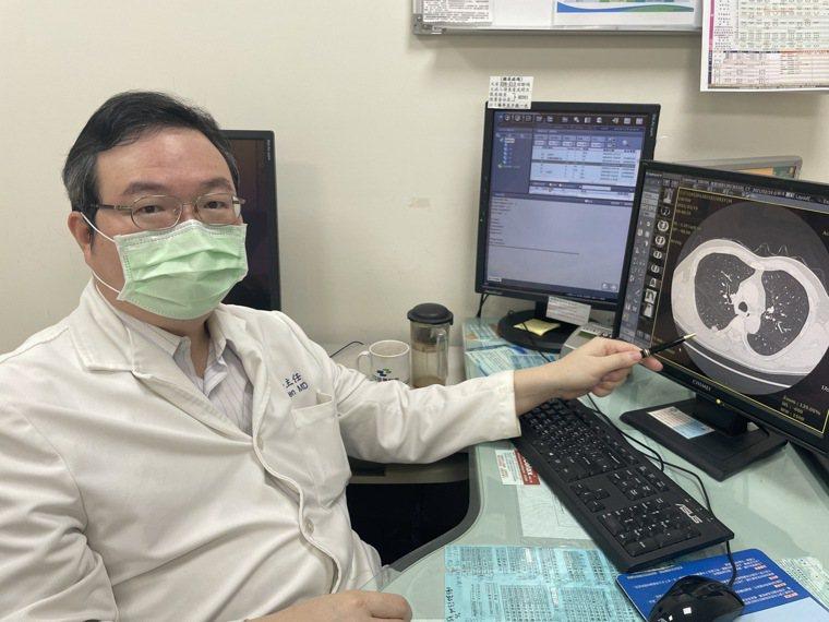 部立苗栗醫院胸腔外科主任連允昌透過CT影像,指出患者右下肺葉有顆1公分的毛玻璃病...