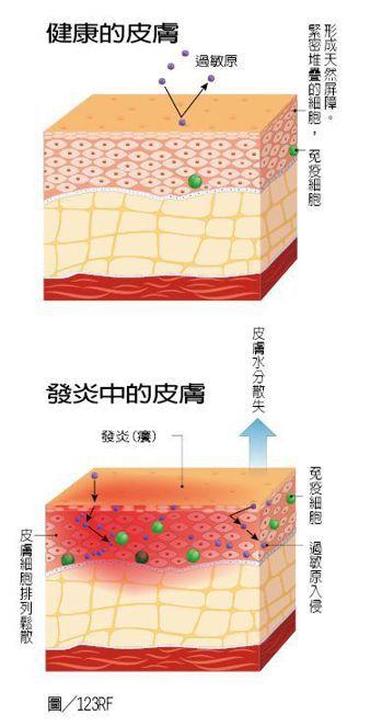 健康皮膚與發炎中皮膚 圖/123RF