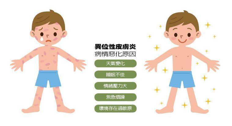 異位性皮膚炎病情惡化原因 圖/123RF