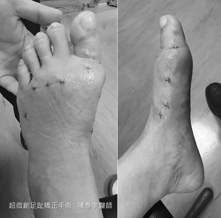 工作狂教授接受「超微創足趾畸形矯正手術」,終結足趾畸形的痛苦。圖為當事人術後照片...