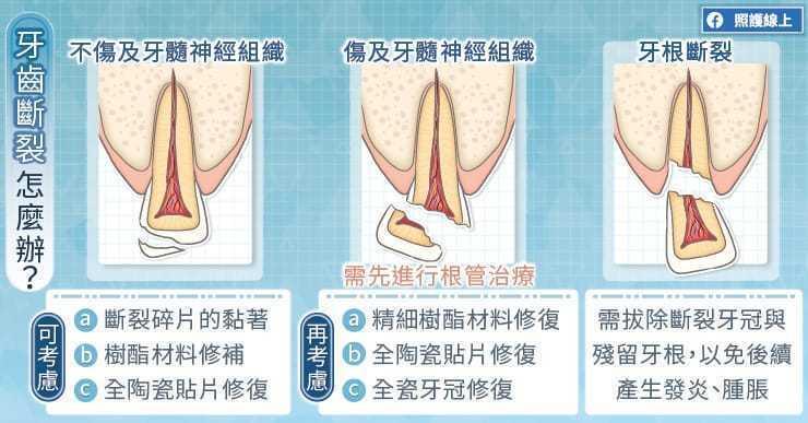 牙齒斷裂位置不同,處理方式也不同 圖/照護線上提供