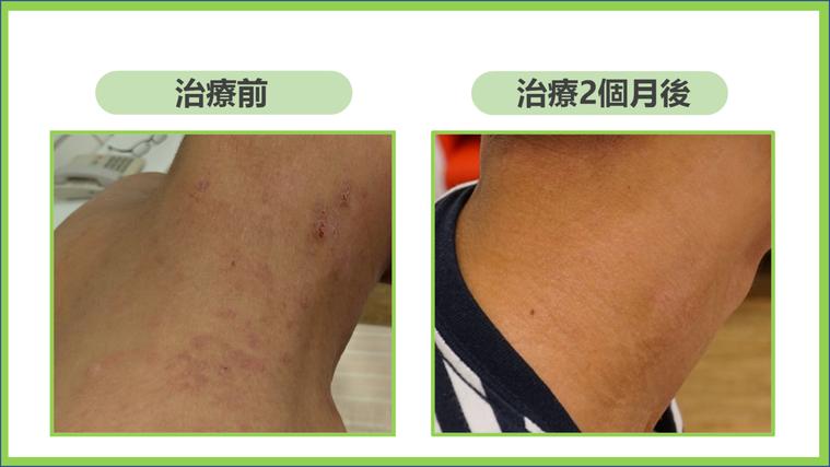 一位15歲中重度異位性皮膚炎患者使用生物製劑,左圖為治療前,右圖為治療2個月後病...