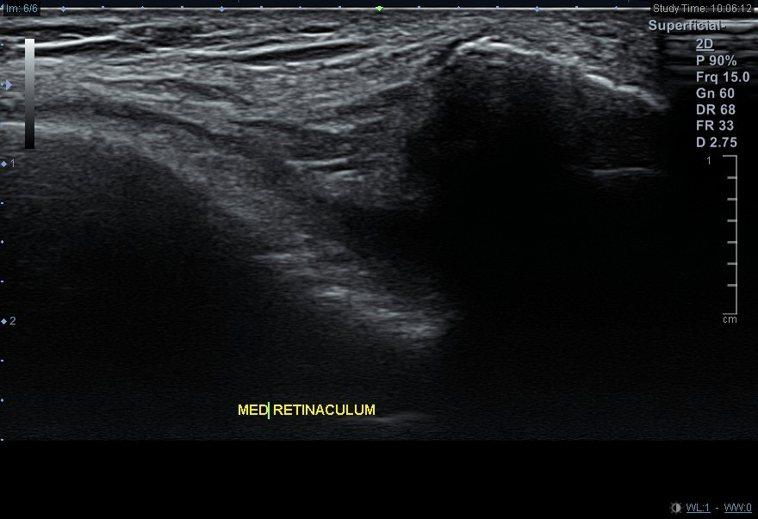 (圖二)超音波檢查內外髕支持帶有無受損