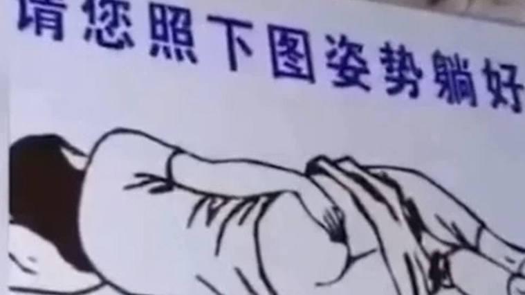 肛拭子採樣示意圖。(取材自微博)