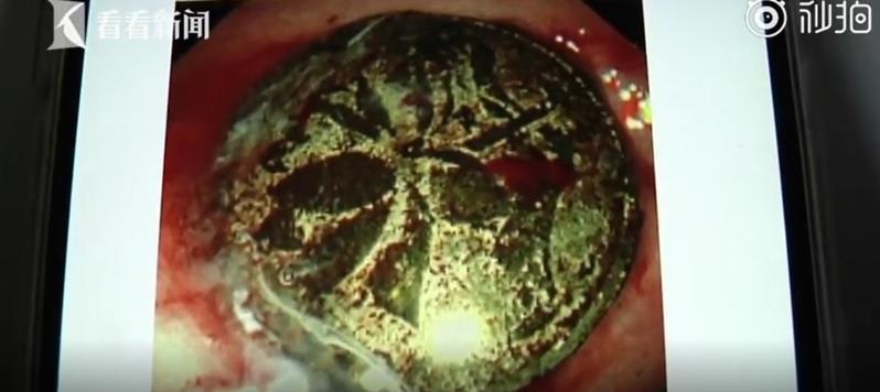 硬幣在男童的體內近一年,已經被胃酸嚴重腐蝕。圖/取自看看新聞