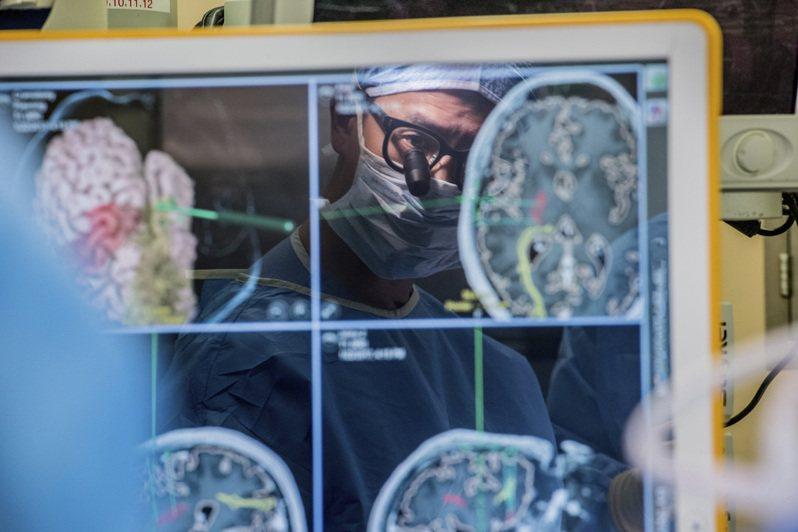 舊金山加大的華裔醫師張復倫正在為病人進行腦部手術。(美聯社)