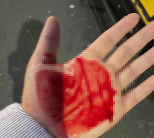 中國留學生在英國大學校園莫名被人砸破頭,一手是血。(取材自極目新聞/受訪者供圖)