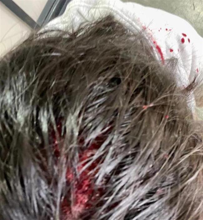 中國留學生在英國大學校園莫名被人砸破頭。(取材自極目新聞/受訪者供圖)